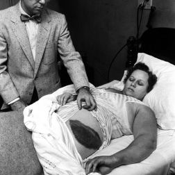 The only person ever struck by a meteor, Ann Hodges survived and was left with this massive bruise. Dr. Moody Jacobs shows off this unbelievable tale of survival. [1954]